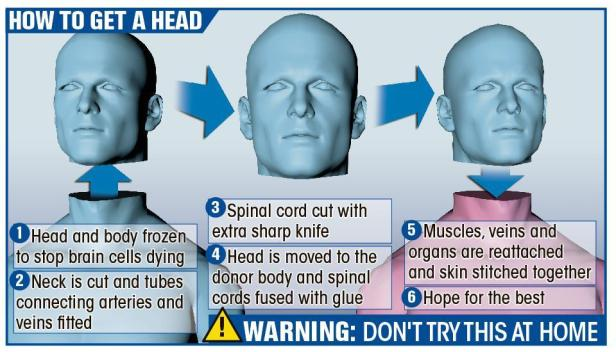 head transplant-graphic procedure